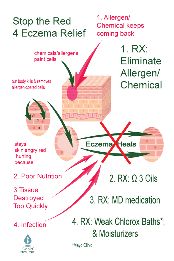 eczema food allergy